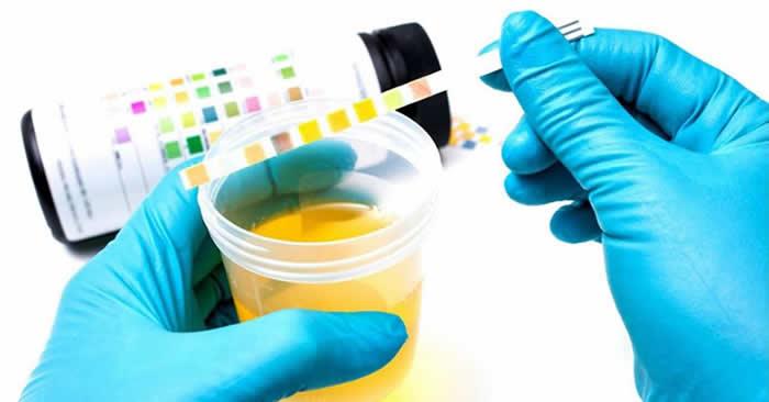 Trastornos urinarios pueden ser causados por enfermedades neurológicas
